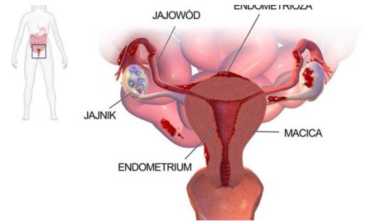 endometriosis Polish version