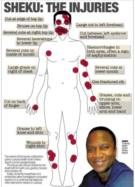 Sheku Bayoh injuries